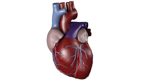 Heart Transplant