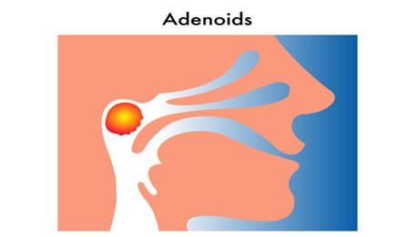 How to Shrink Adenoids forecast