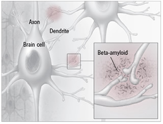 Beta-amyloid plaque