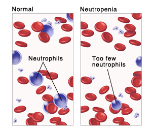Neutropenia