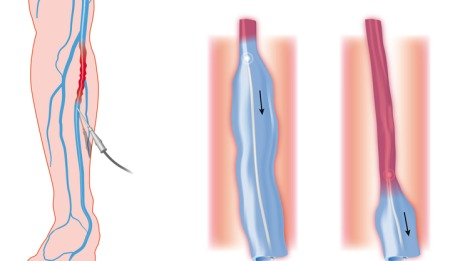Endovenous Laser Treatment