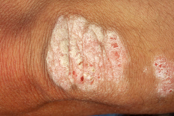 psoriasis