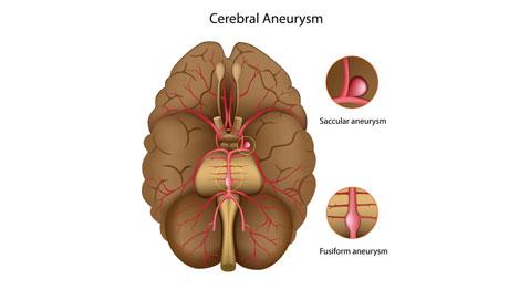 Brain Aneurysm Repair