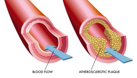 Coronary Atherectomy