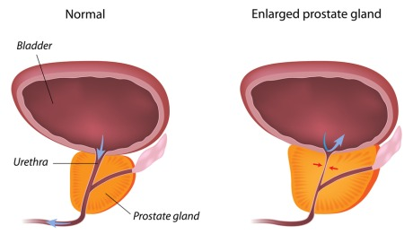 TURP (Transurethral Resection of the Prostate)