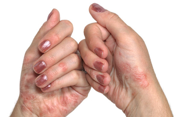 Best Psoriasis Treatment Center in San Francisco, CA 2