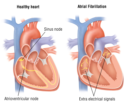 Atrial fibrillation 1