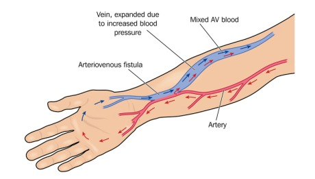 Arteriovenous (AV) Fistula Surgery - 460x261