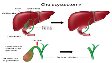 what is cholecystectomy Looking for cholecystectomy find out information about cholecystectomy surgical removal of the gallbladder and cystic duct explanation of cholecystectomy.