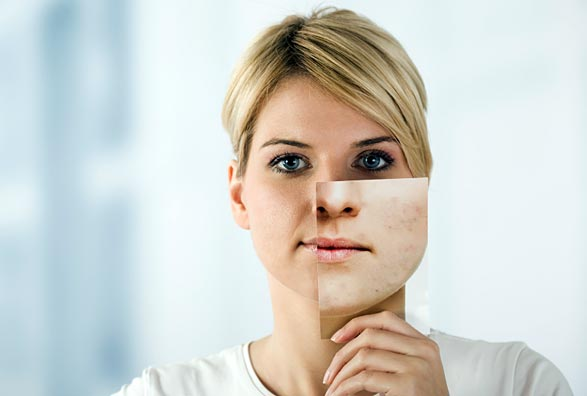 Woman holding up an image of rosacea