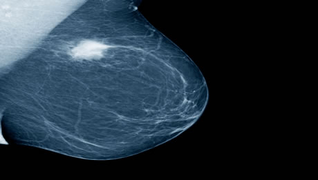 Lumpectomy