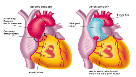 Aortic Aneurysm Repair