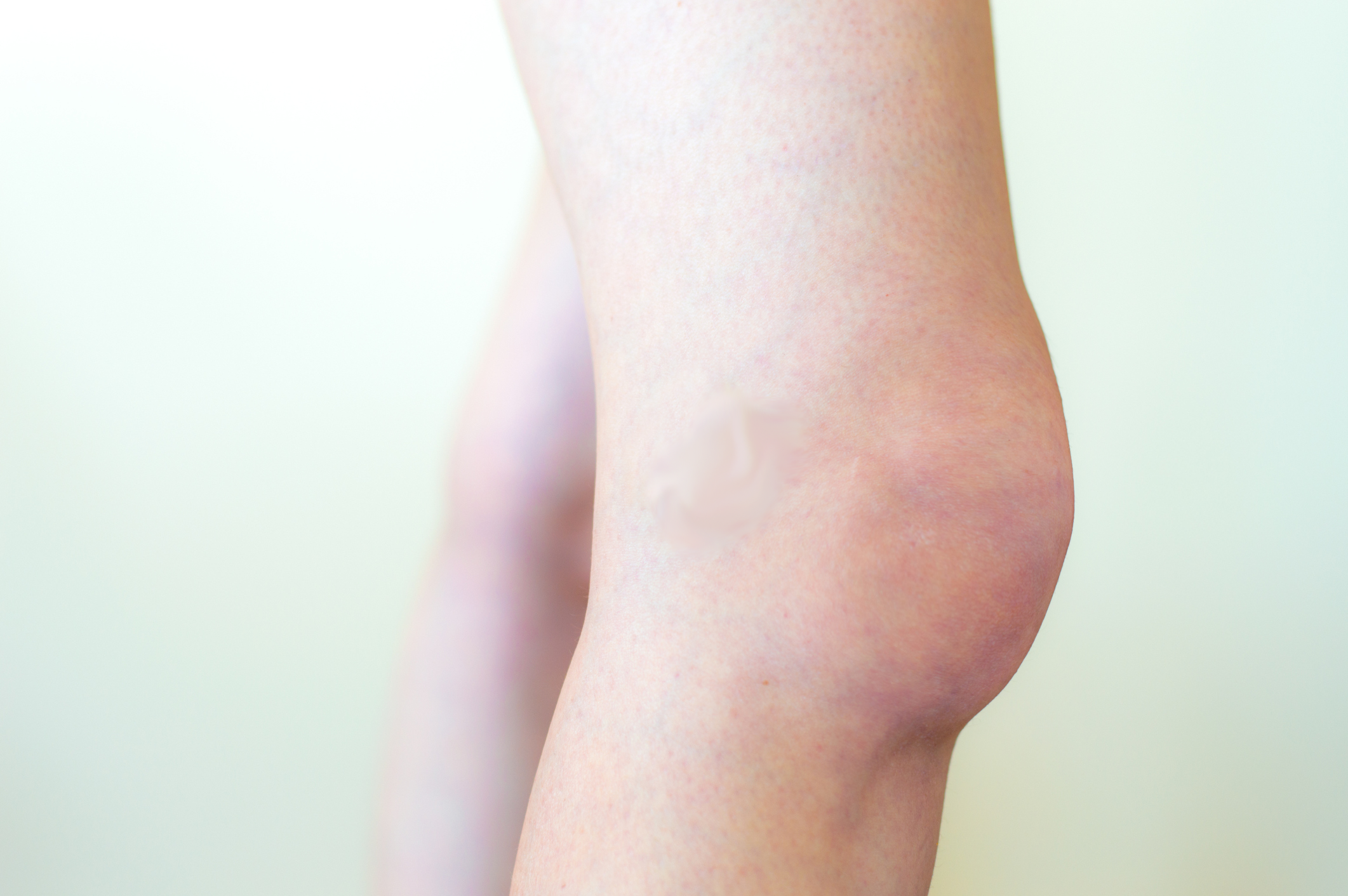 how just before slim down redness during joint joints