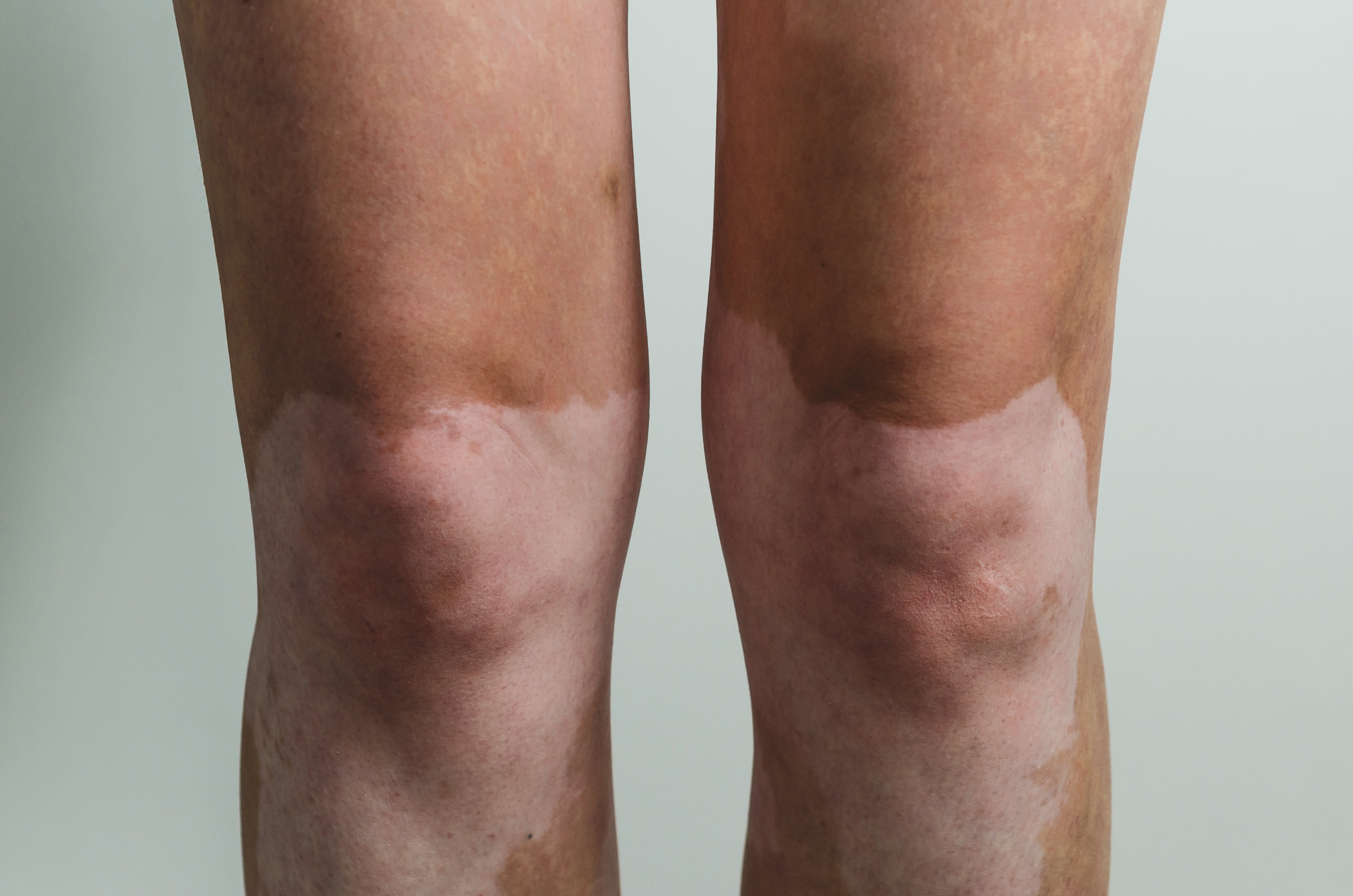 Vitiligo Symptoms Causes Treatments