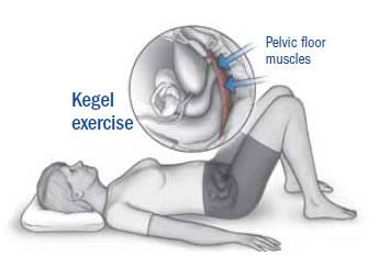 After exercises and before kegel Kegels Results