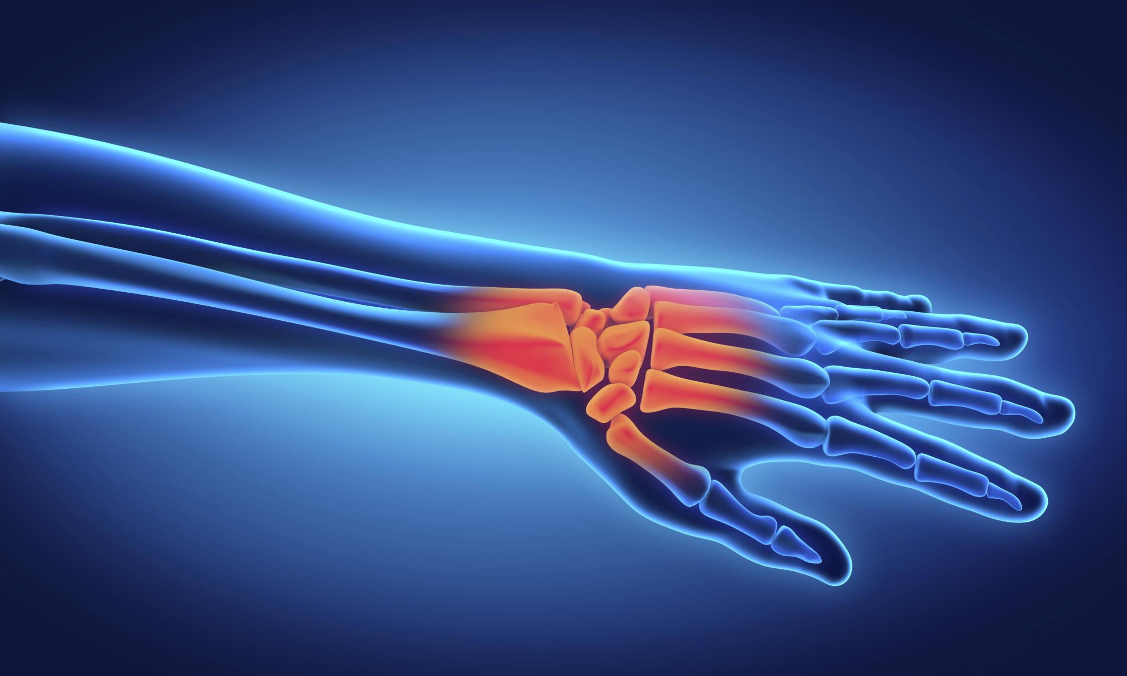 artralgie definitie