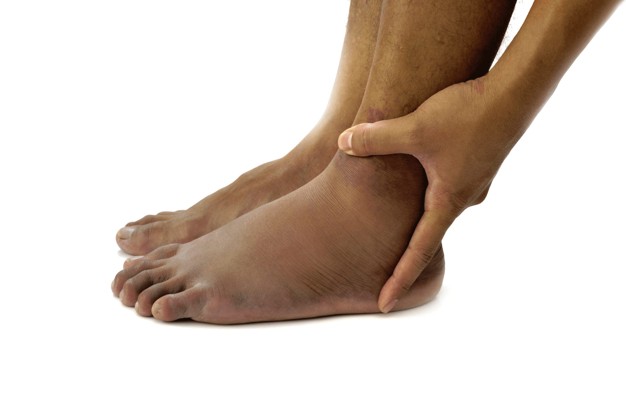 Fluid Retention Symptoms Causes Treatments