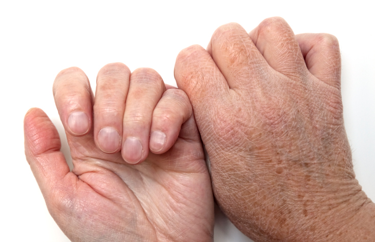 Flaky Skin Symptoms Causes Treatments