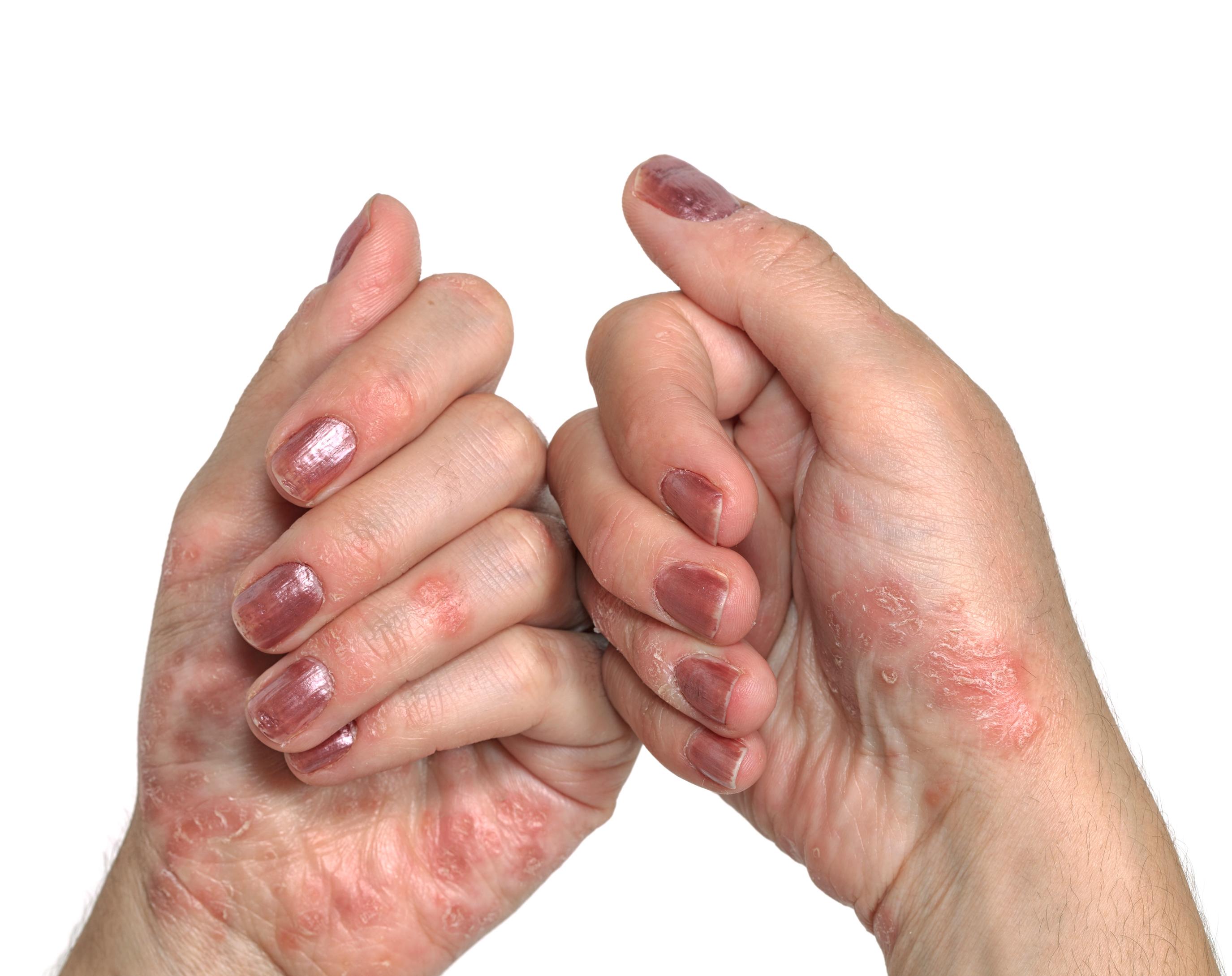 pustular psoriasis hands pictures Holt- tengeri gyógyfürdők pikkelysömör kezelésére