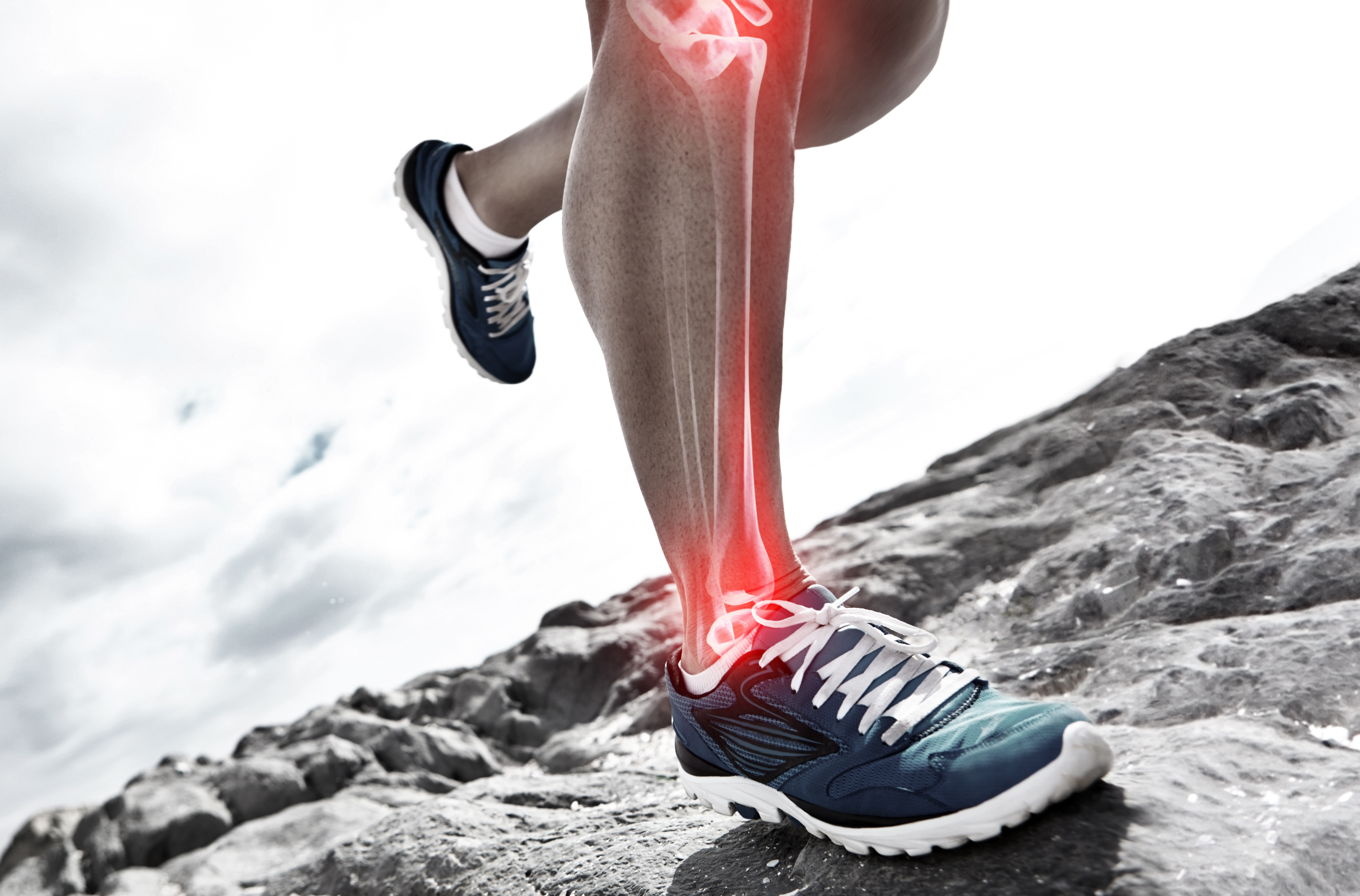 6 Things to Know About Shin Splints